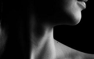 latigazo cervical o sindrome estres postraumatico